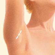 Breast Augmentation Denver CO |Dr. Mouchantat Plastic Surgery